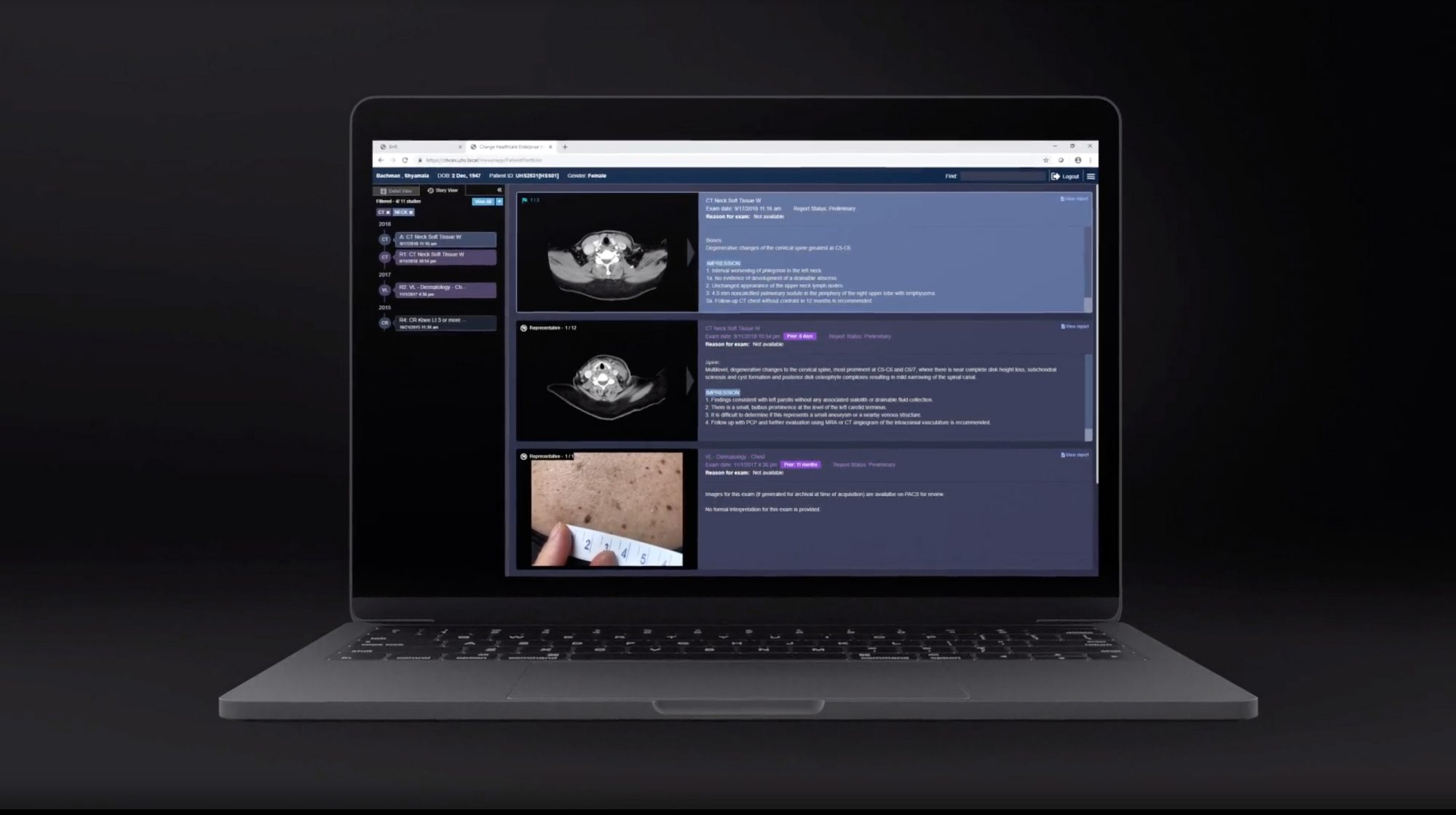 Change Healthcare Enterprise Viewer on laptop